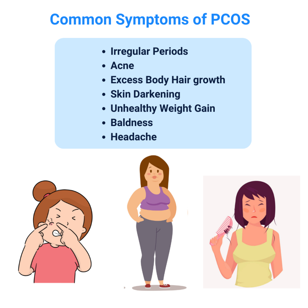 PCOS symptoms and treatment